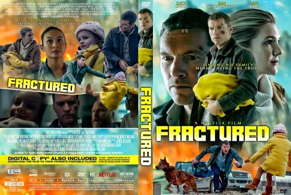 Trauma / Fractured